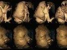 Ecografías en 4-D que muestran los efectos negativos del consumo de tabaco durante el embarazo