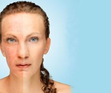 14 remedios caseros y naturales para quitar las manchas de la piel