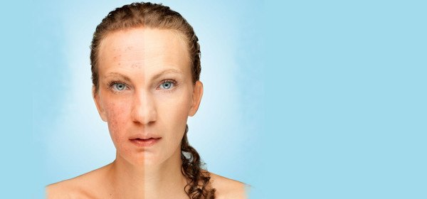 14-remedios-caseros-y-naturales-para-quitar-las-manchas-de-la-piel